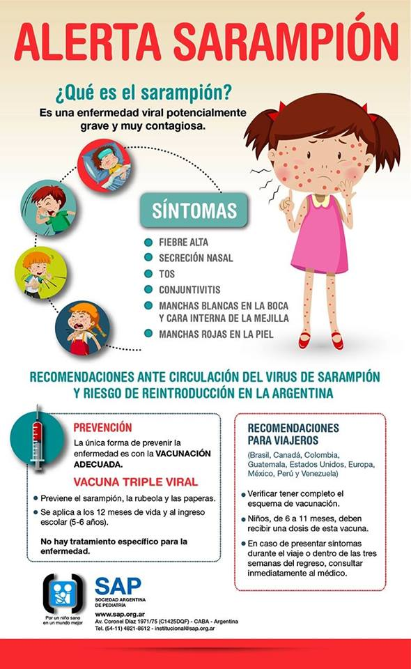 sarampion tratamiento en adultos